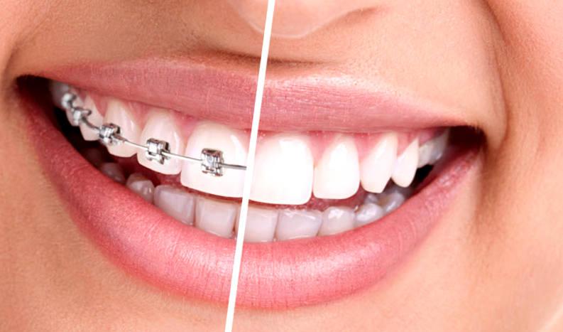 Как исправить некрасивую улыбку